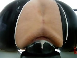 Extreme slit dilation and stretching with giant cone-dildo